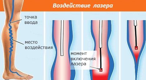 Появление вен на ногах боль в ногах