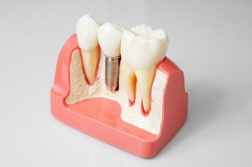 Имплантация зубов в новокузнецке цены отзывы